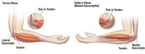 Melyek a könyökfájdalom okai? Fájdalom a váll- és könyökízületben